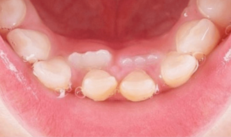 over retained teeth